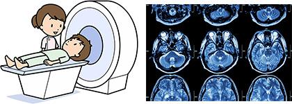 CT検査イメージ